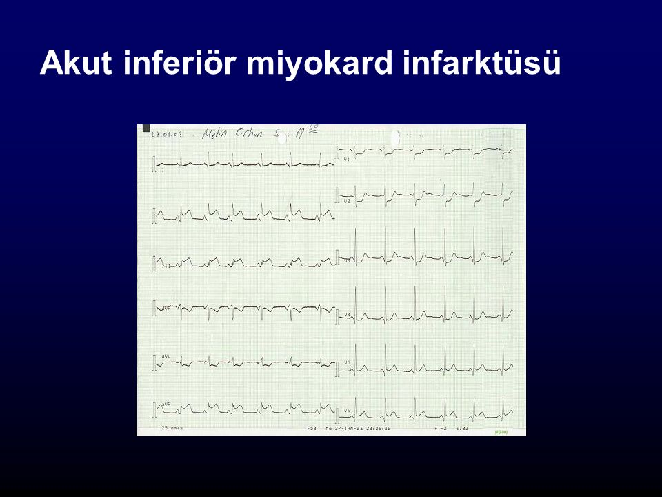 Akut inferiör miyokard infarktüsü