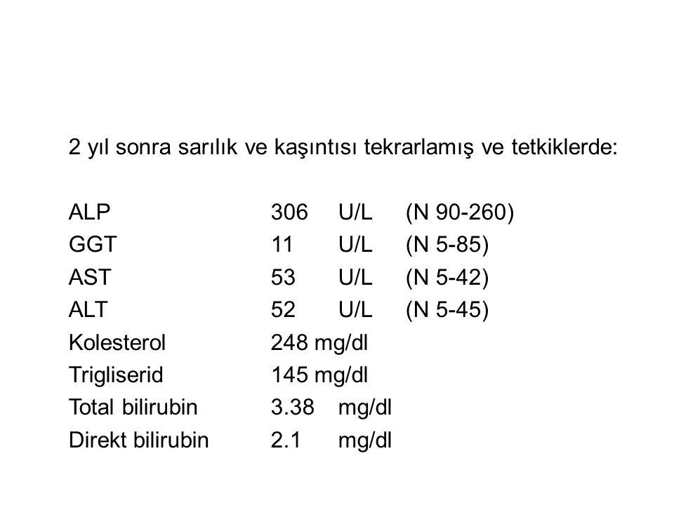 2 yıl sonra sarılık ve kaşıntısı tekrarlamış ve tetkiklerde: ALP306U/L(N 90-260) GGT11U/L(N 5-85) AST53U/L(N 5-42) ALT52U/L(N 5-45) Kolesterol248 mg/d