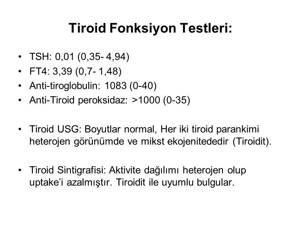 Tiroid Fonksiyon Testleri: TSH: 0,01 (0,35- 4,94) FT4: 3,39 (0,7- 1,48) Anti-tiroglobulin: 1083 (0-40) Anti-Tiroid peroksidaz: >1000 (0-35) Tiroid USG