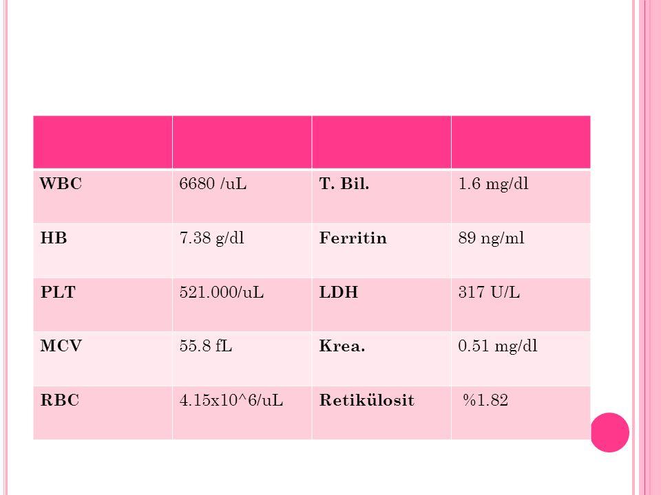 WBC 6680 /uL T. Bil. 1.6 mg/dl HB 7.38 g/dl Ferritin 89 ng/ml PLT 521.000/uL LDH 317 U/L MCV 55.8 fL Krea. 0.51 mg/dl RBC 4.15x10^6/uL Retikülosit %1.