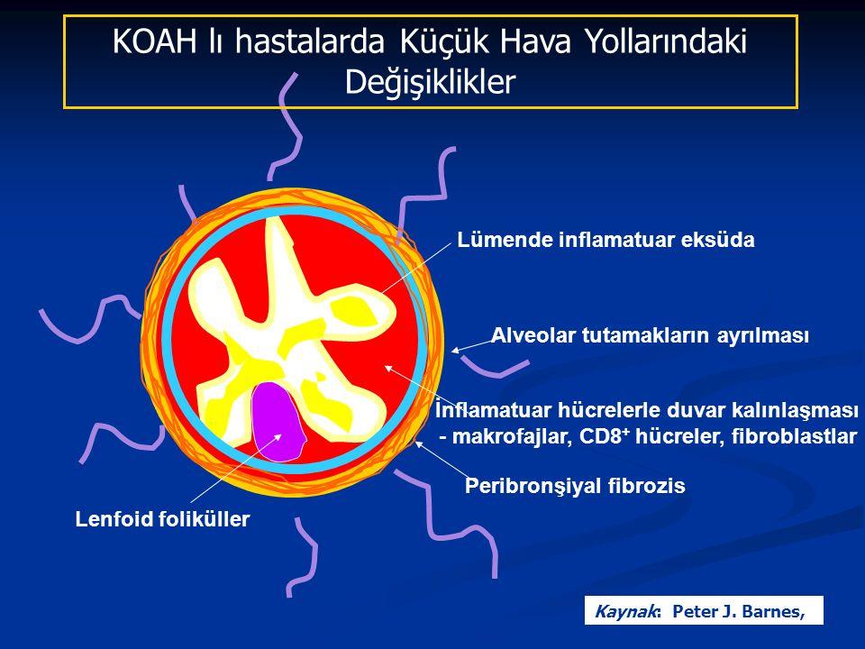 Alveolar tutamakların ayrılması Lümende inflamatuar eksüda Peribronşiyal fibrozis Lenfoid foliküller İnflamatuar hücrelerle duvar kalınlaşması - makrofajlar, CD8 + hücreler, fibroblastlar KOAH lı hastalarda Küçük Hava Yollarındaki Değişiklikler Kaynak: Peter J.