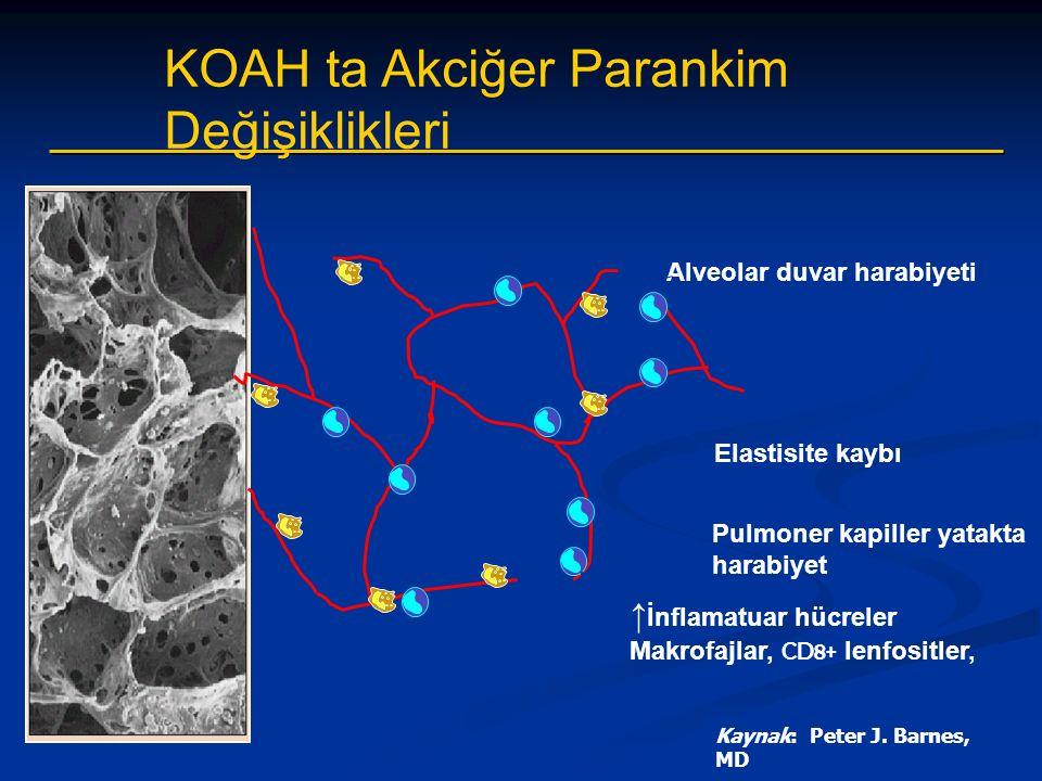 Alveolar duvar harabiyeti Elastisite kaybı Pulmoner kapiller yatakta harabiyet ↑ İnflamatuar hücreler Makrofajlar, CD8+ lenfositler, Kaynak: Peter J.