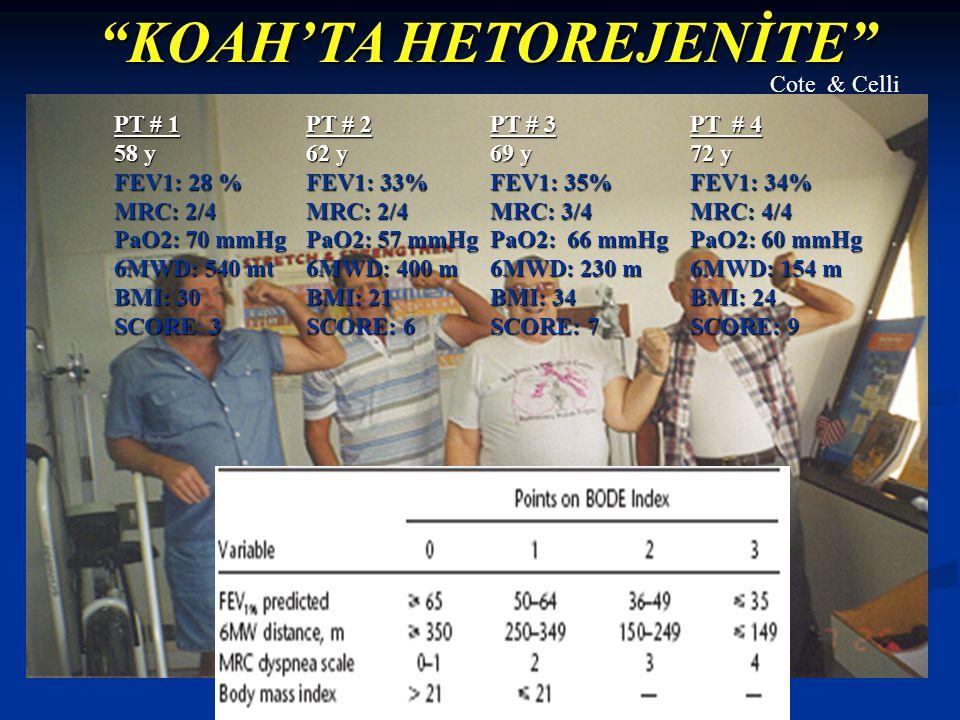 KOAH'TA HETOREJENİTE PT # 1 58 y FEV1: 28 % MRC: 2/4 PaO2: 70 mmHg 6MWD: 540 mt BMI: 30 SCORE3 SCORE: 3 PT # 2 62 y FEV1: 33% MRC: 2/4 PaO2: 57 mmHg 6MWD: 400 m BMI: 21 SCORE: 6 PT # 3 69 y FEV1: 35% MRC: 3/4 PaO2: 66 mmHg 6MWD: 230 m BMI: 34 SCORE: 7 PT # 4 72 y FEV1: 34% MRC: 4/4 PaO2: 60 mmHg 6MWD: 154 m BMI: 24 SCORE: 9 Cote & Celli