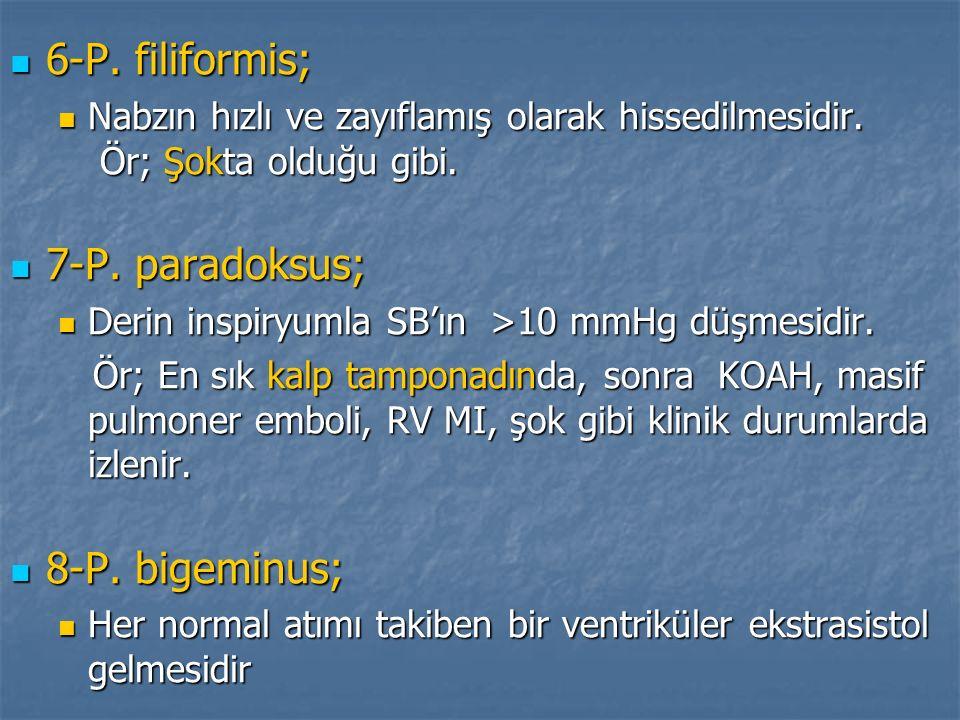 6-P. filiformis; 6-P. filiformis; Nabzın hızlı ve zayıflamış olarak hissedilmesidir. Ör; Şokta olduğu gibi. Nabzın hızlı ve zayıflamış olarak hissedil
