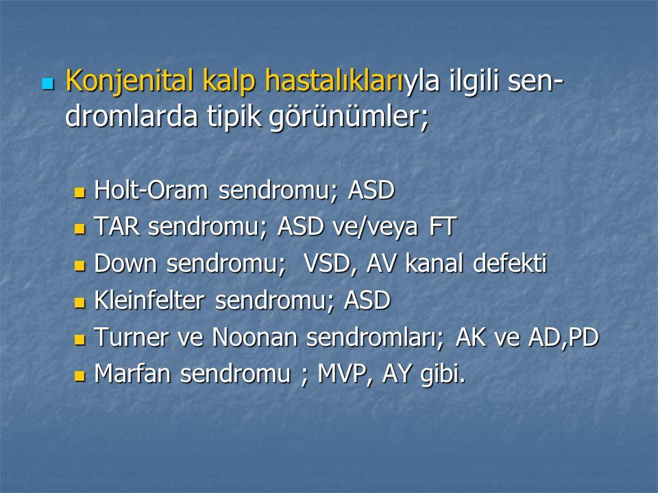 Konjenital kalp hastalıklarıyla ilgili sen- dromlarda tipik görünümler; Konjenital kalp hastalıklarıyla ilgili sen- dromlarda tipik görünümler; Holt-O