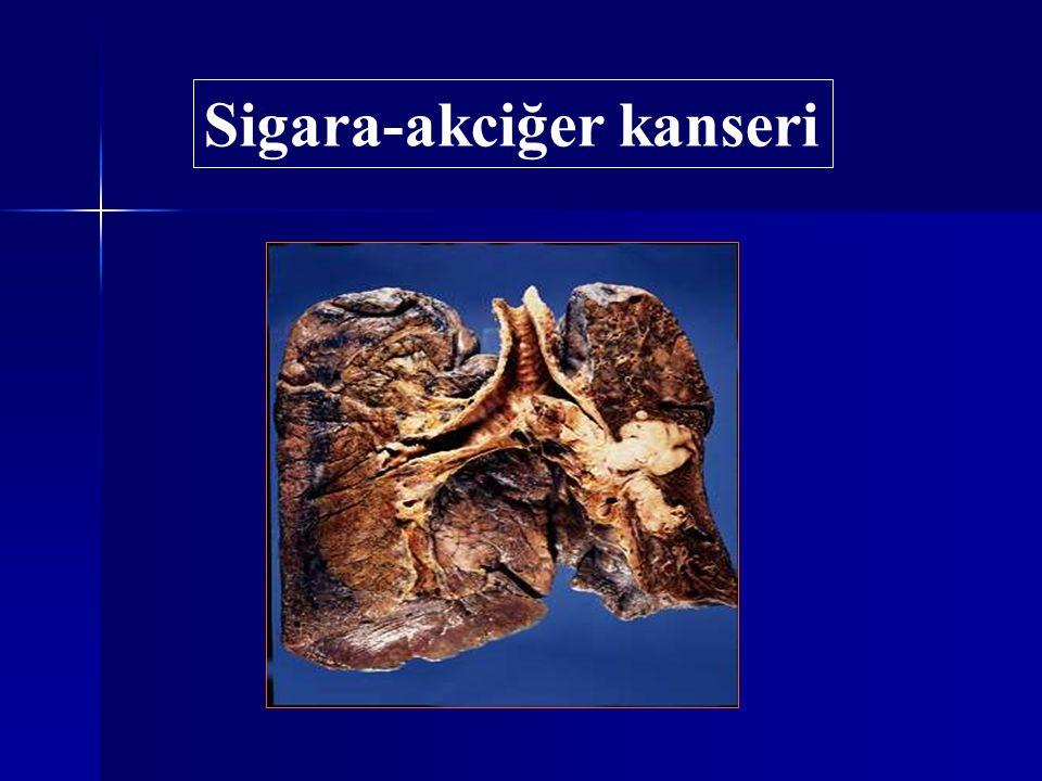Sigarayı bırakma şekli Başarı oranı Sigarayı bırakma şekli Başarı oranı Aniden bırakma % 80 Aniden bırakma % 80 Azaltarak bırakma % 6 Azaltarak bırakma % 6 Sigara birden bırakılmalıdır