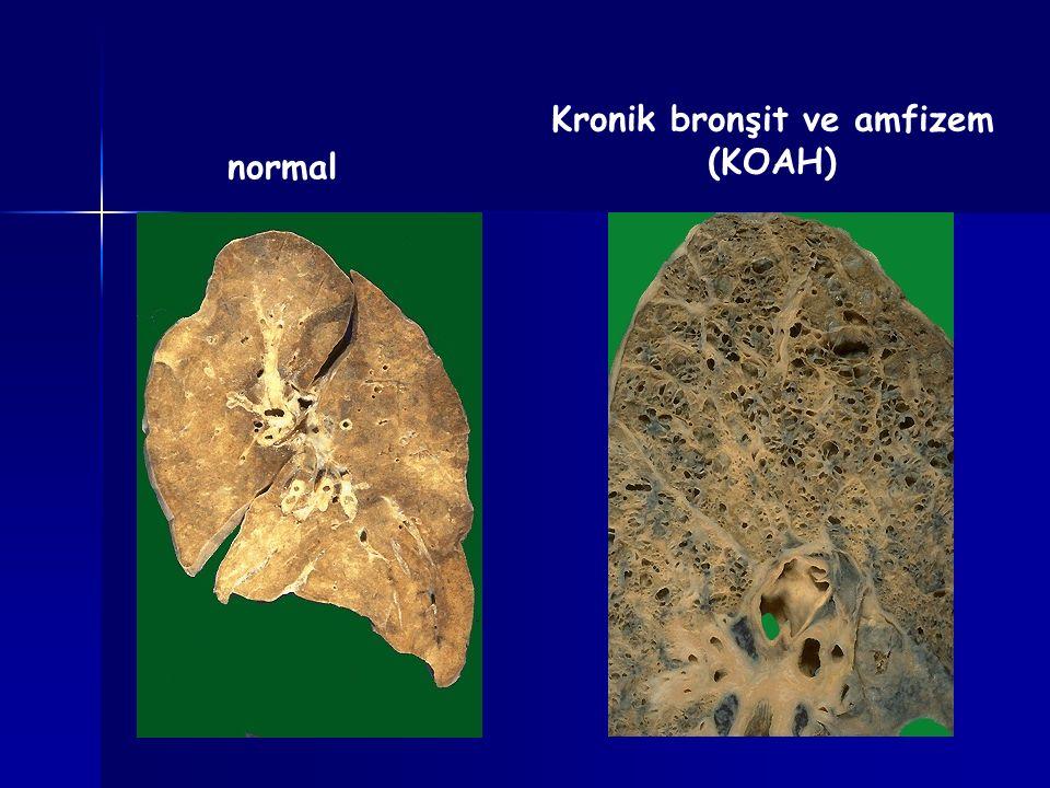 normal Kronik bronşit ve amfizem (KOAH)