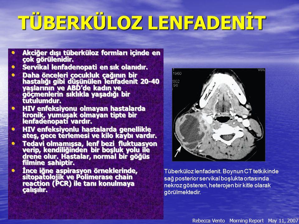 TÜBERKÜLOZ LENFADENİT TÜBERKÜLOZ LENFADENİT Akciğer dışı tüberküloz formları içinde en çok görülenidir. Akciğer dışı tüberküloz formları içinde en çok