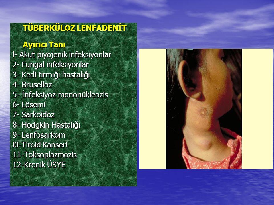 TÜBERKÜLOZ LENFADENİT Ayırıcı Tanı l- Akut piyojenik infeksiyonlar l- Akut piyojenik infeksiyonlar 2- Fungal infeksiyonlar 2- Fungal infeksiyonlar 3-