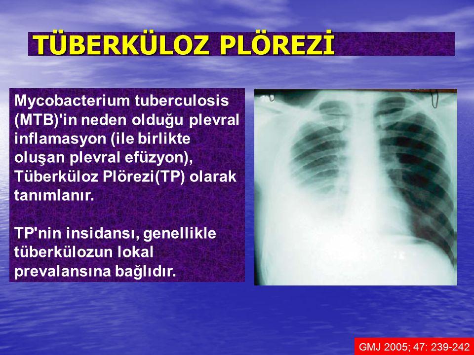 Mycobacterium tuberculosis (MTB)'in neden olduğu plevral inflamasyon (ile birlikte oluşan plevral efüzyon), Tüberküloz Plörezi(TP) olarak tanımlanır.
