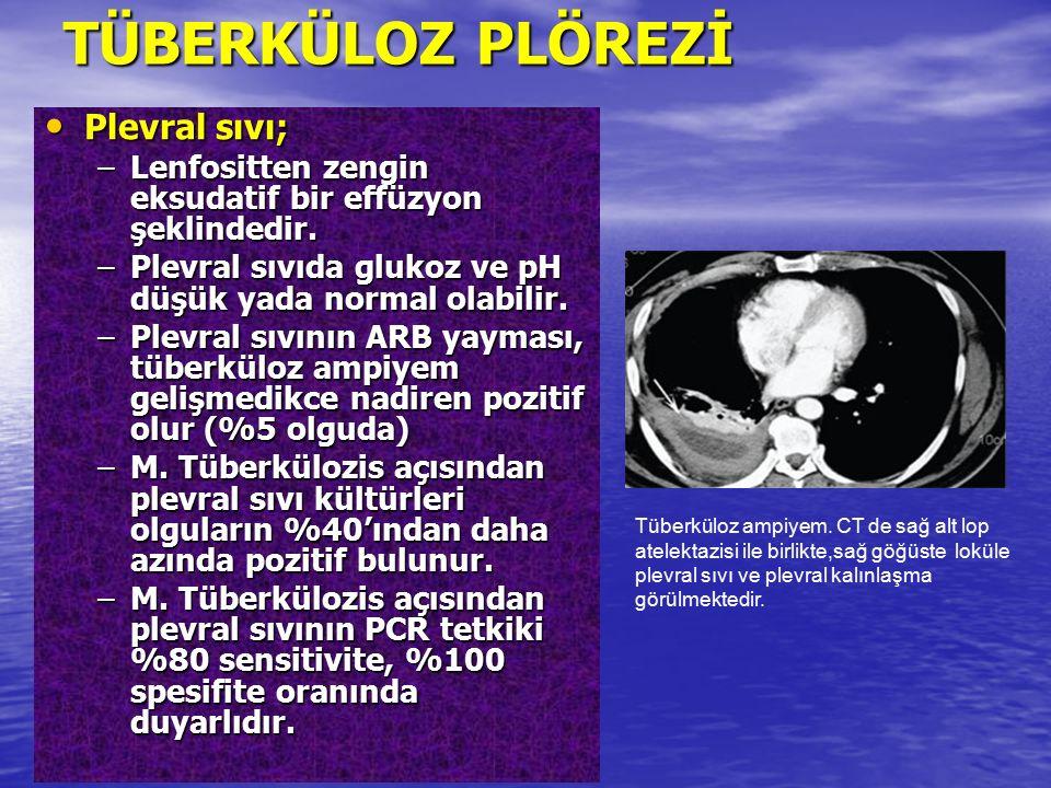 TÜBERKÜLOZ PLÖREZİ Plevral sıvı; Plevral sıvı; –Lenfositten zengin eksudatif bir effüzyon şeklindedir. –Plevral sıvıda glukoz ve pH düşük yada normal