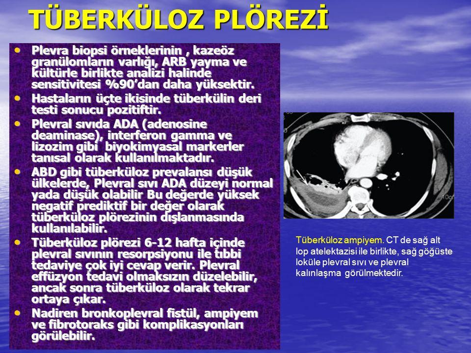 Plevra biopsi örneklerinin, kazeöz granülomların varlığı, ARB yayma ve kültürle birlikte analizi halinde sensitivitesi %90'dan daha yüksektir. Plevra
