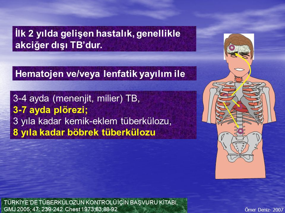 İlk 2 yılda gelişen hastalık, genellikle akciğer dışı TB'dur. TÜRKİYE'DE TÜBERKÜLOZUN KONTROLÜ İÇİN BAŞVURU KİTABI, GMJ 2005; 47: 239-242 Chest 1973;6