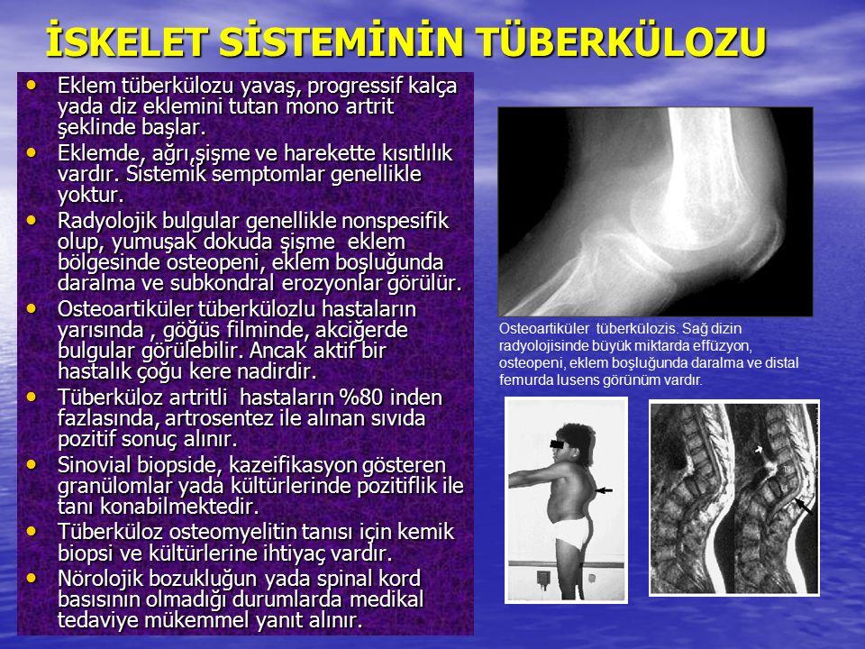 Eklem tüberkülozu yavaş, progressif kalça yada diz eklemini tutan mono artrit şeklinde başlar. Eklem tüberkülozu yavaş, progressif kalça yada diz ekle