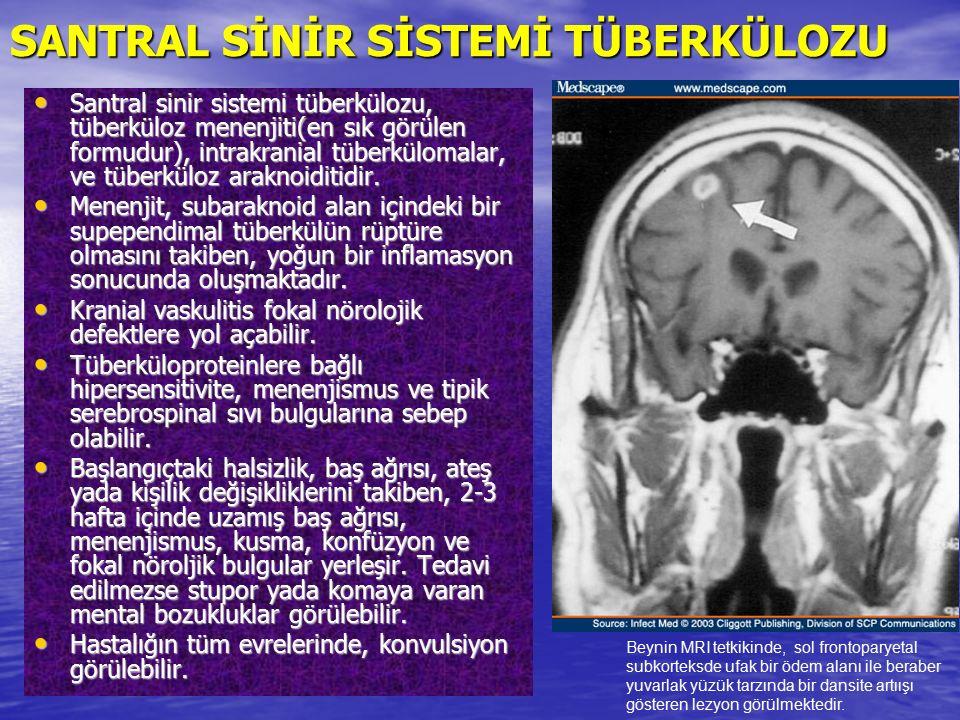SANTRAL SİNİR SİSTEMİ TÜBERKÜLOZU Santral sinir sistemi tüberkülozu, tüberküloz menenjiti(en sık görülen formudur), intrakranial tüberkülomalar, ve tü