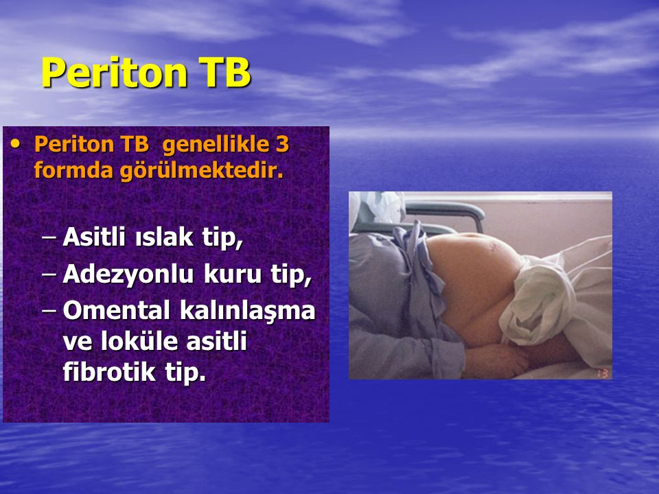 Periton TB Periton TB genellikle 3 formda görülmektedir. Periton TB genellikle 3 formda görülmektedir. –Asitli ıslak tip, –Adezyonlu kuru tip, –Omenta