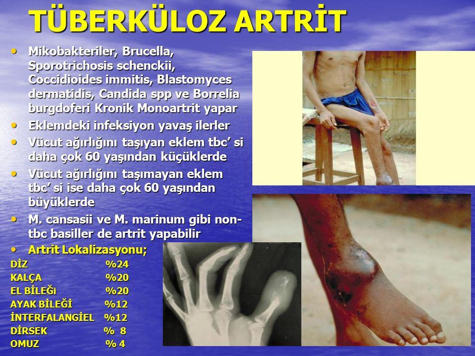 TÜBERKÜLOZ ARTRİT Mikobakteriler, Brucella, Sporotrichosis schenckii, Coccidioides immitis, Blastomyces dermatidis, Candida spp ve Borrelia burgdoferi