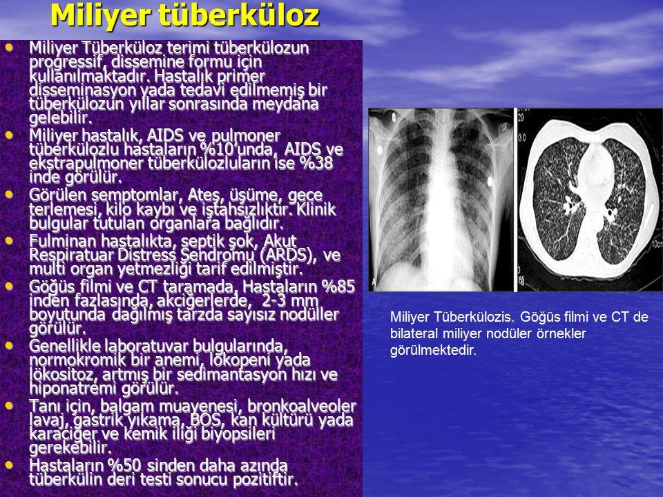 Miliyer tüberküloz Miliyer Tüberküloz terimi tüberkülozun progressif, dissemine formu için kullanılmaktadır. Hastalık primer disseminasyon yada tedavi