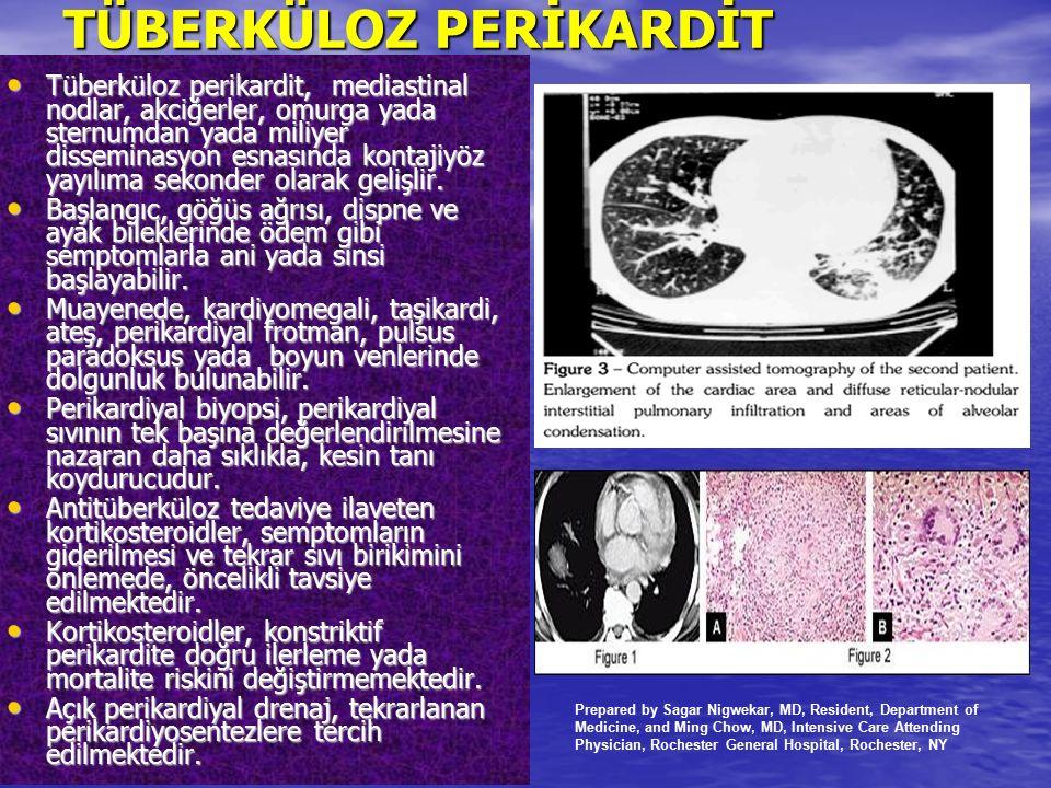 TÜBERKÜLOZ PERİKARDİT Tüberküloz perikardit, mediastinal nodlar, akciğerler, omurga yada sternumdan yada miliyer disseminasyon esnasında kontajiyöz ya
