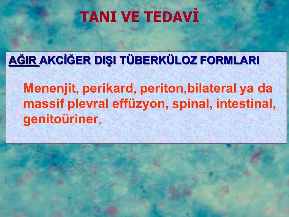 AĞIR AKCİĞER DIŞI TÜBERKÜLOZ FORMLARI Menenjit, perikard, periton,bilateral ya da massif plevral effüzyon, spinal, intestinal, genitoüriner, TANI VE T