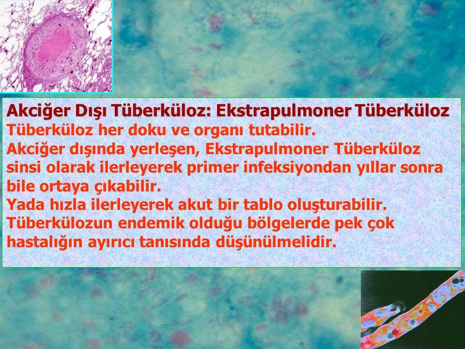 İNTESTİNAL TÜBERKÜLOZ Kesin tanı, kolonoskopi yada laparotomi ile elde edilen biyopsi örneklerinin histopatolojisi ve kültürü ile konmaktadır.
