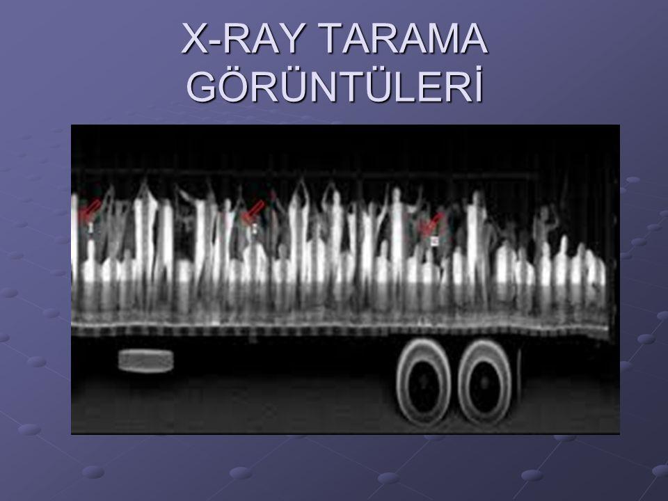 X-RAY TARAMA GÖRÜNTÜLERİ