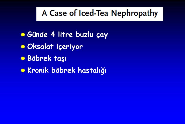 l Günde 4 litre buzlu çay l Oksalat içeriyor l Böbrek taşı l Kronik böbrek hastalığı
