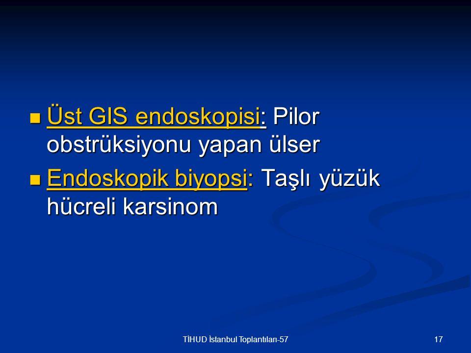 17TİHUD İstanbul Toplantıları-57 Üst GIS endoskopisi: Pilor obstrüksiyonu yapan ülser Üst GIS endoskopisi: Pilor obstrüksiyonu yapan ülser Endoskopik