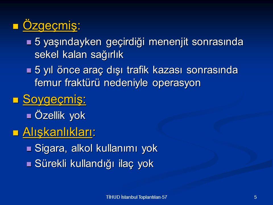 26TİHUD İstanbul Toplantıları-57 EKG: Sinüs taşikardisi EKG: Sinüs taşikardisi PA akciğer grafisi: PA akciğer grafisi: Bilateral havalanma artışı Bilateral havalanma artışı Aktif infiltratif lezyon yok.