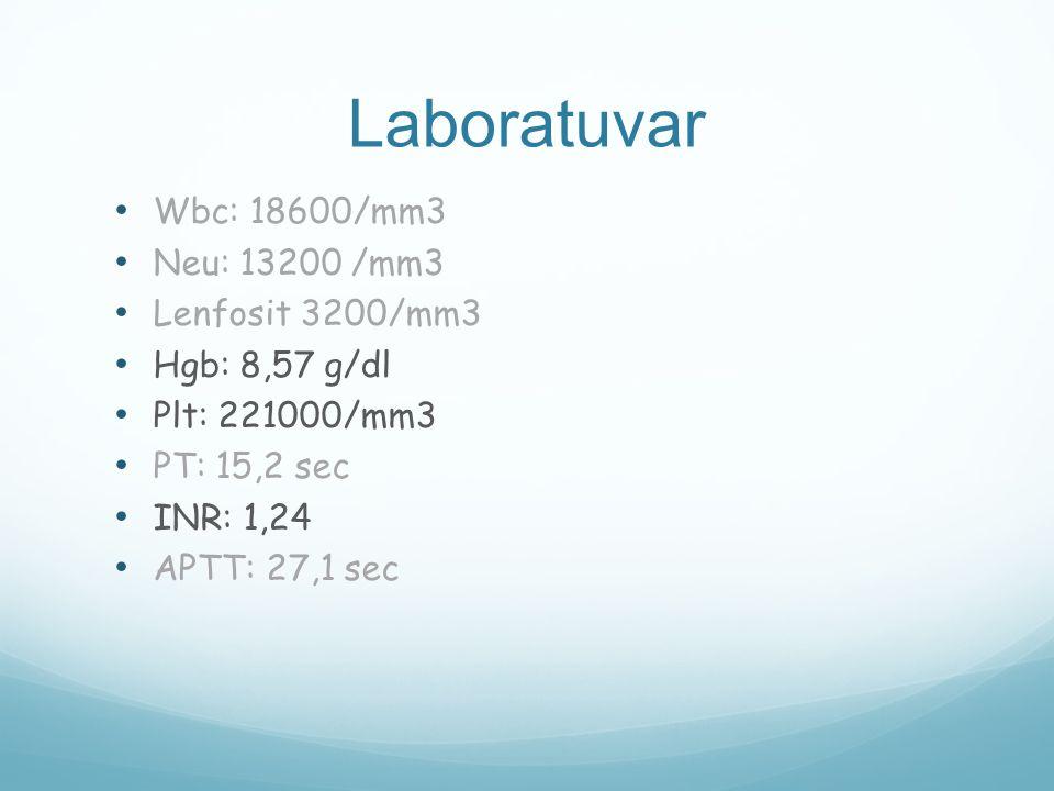 Laboratuvar Wbc: 18600/mm3 Neu: 13200 /mm3 Lenfosit 3200/mm3 Hgb: 8,57 g/dl Plt: 221000/mm3 PT: 15,2 sec INR: 1,24 APTT: 27,1 sec