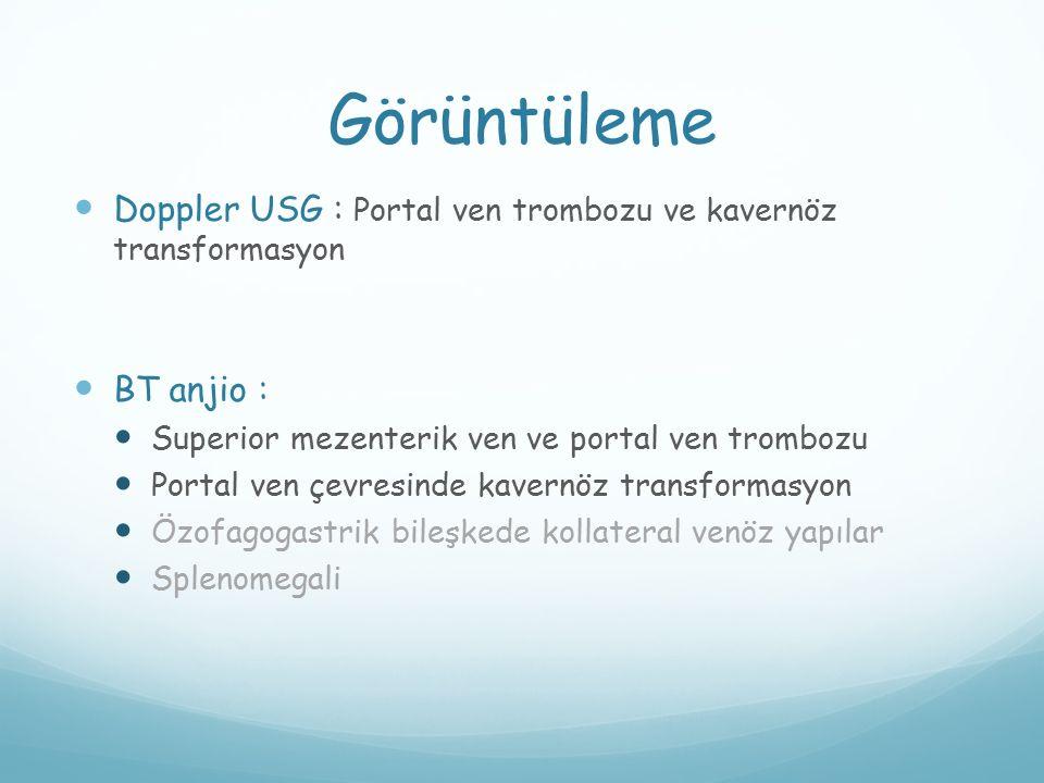 Görüntüleme Doppler USG : Portal ven trombozu ve kavernöz transformasyon BT anjio : Superior mezenterik ven ve portal ven trombozu Portal ven çevresin