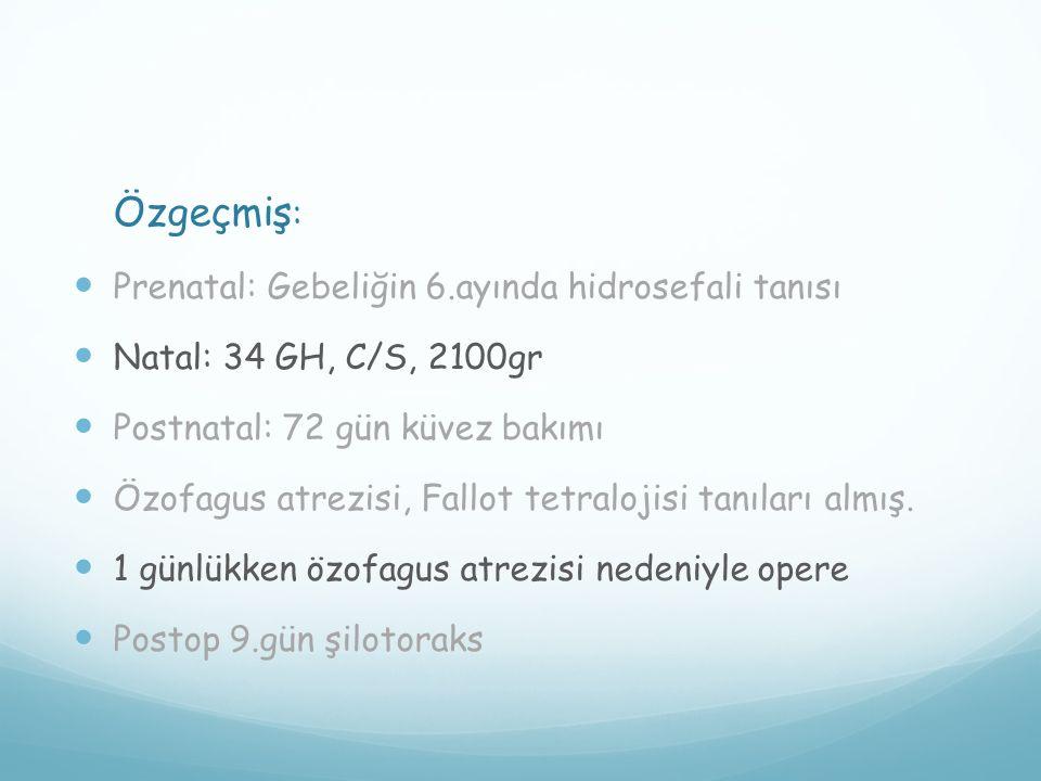 Özgeçmiş : Prenatal: Gebeliğin 6.ayında hidrosefali tanısı Natal: 34 GH, C/S, 2100gr Postnatal: 72 gün küvez bakımı Özofagus atrezisi, Fallot tetraloj