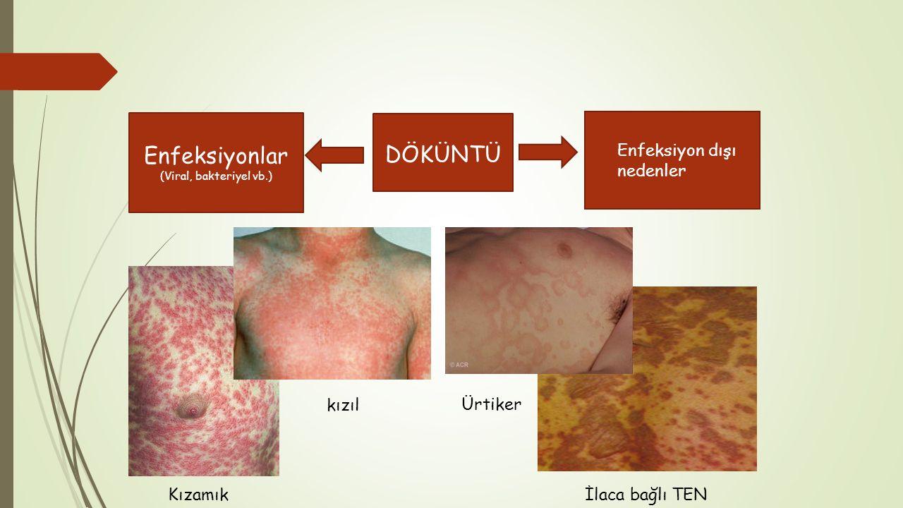  Enfeksiyon dışı nedenler DÖKÜNTÜ Enfeksiyonlar (Viral, bakteriyel vb.) İlaca bağlı TEN Kızamık Ürtiker kızıl