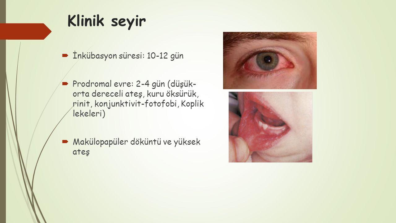 Klinik seyir  İnkübasyon süresi: 10-12 gün  Prodromal evre: 2-4 gün (düşük- orta dereceli ateş, kuru öksürük, rinit, konjunktivit-fotofobi, Koplik l