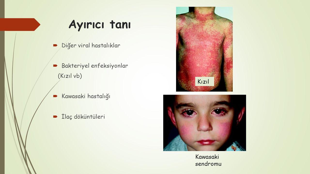 Ayırıcı tanı  Diğer viral hastalıklar  Bakteriyel enfeksiyonlar (Kızıl vb)  Kawasaki hastalığı  İlaç döküntüleri Kızıl Kawasaki sendromu