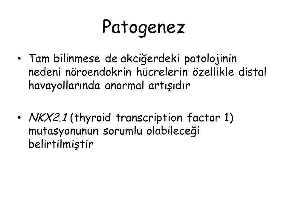 Patogenez Tam bilinmese de akciğerdeki patolojinin nedeni nöroendokrin hücrelerin özellikle distal havayollarında anormal artışıdır NKX2.1 (thyroid tr