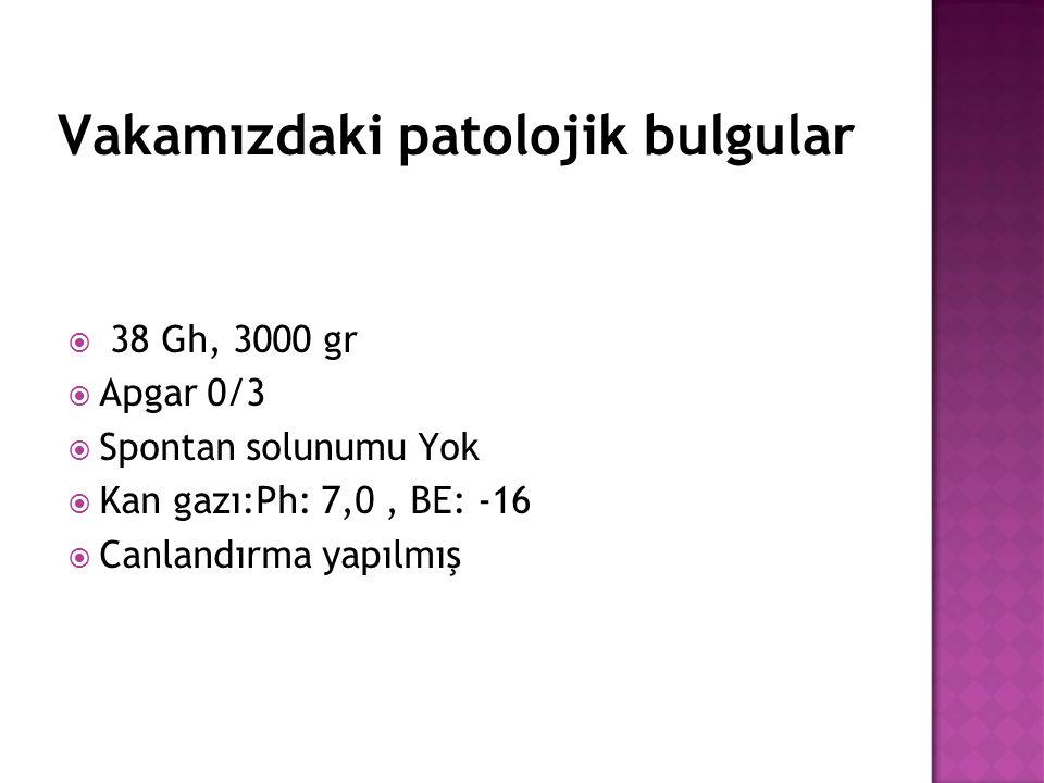 Vakamızdaki patolojik bulgular  38 Gh, 3000 gr  Apgar 0/3  Spontan solunumu Yok  Kan gazı:Ph: 7,0, BE: -16  Canlandırma yapılmış