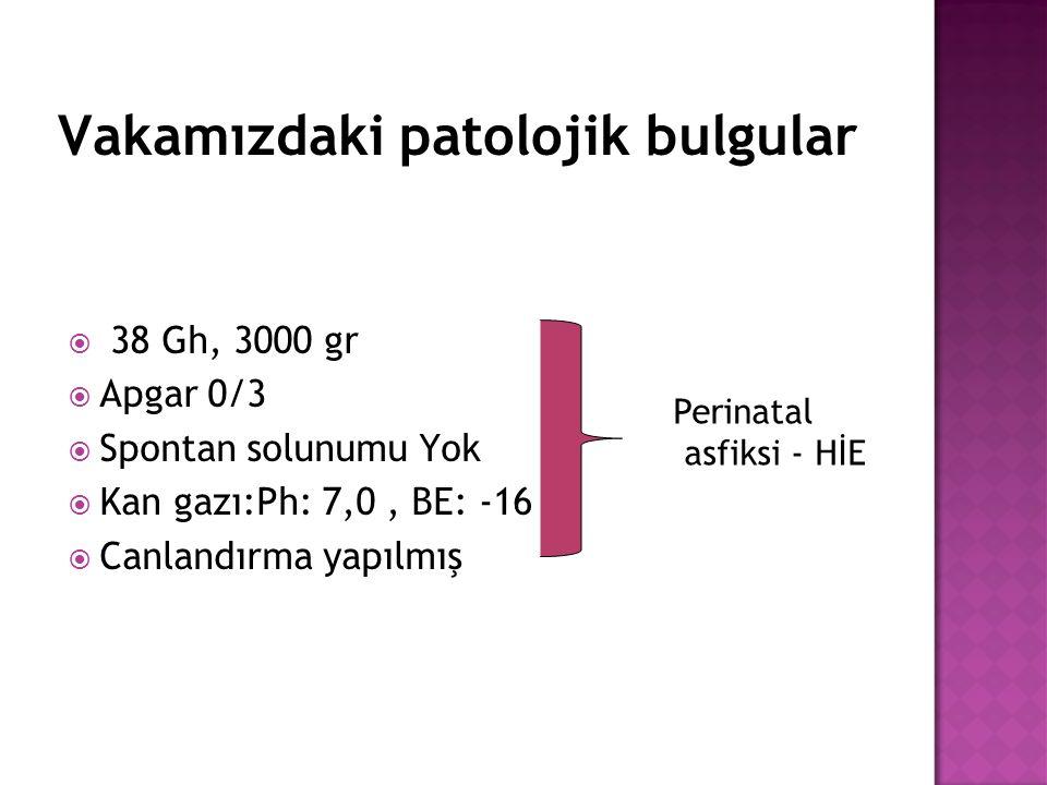 Vakamızdaki patolojik bulgular  38 Gh, 3000 gr  Apgar 0/3  Spontan solunumu Yok  Kan gazı:Ph: 7,0, BE: -16  Canlandırma yapılmış Perinatal asfiks
