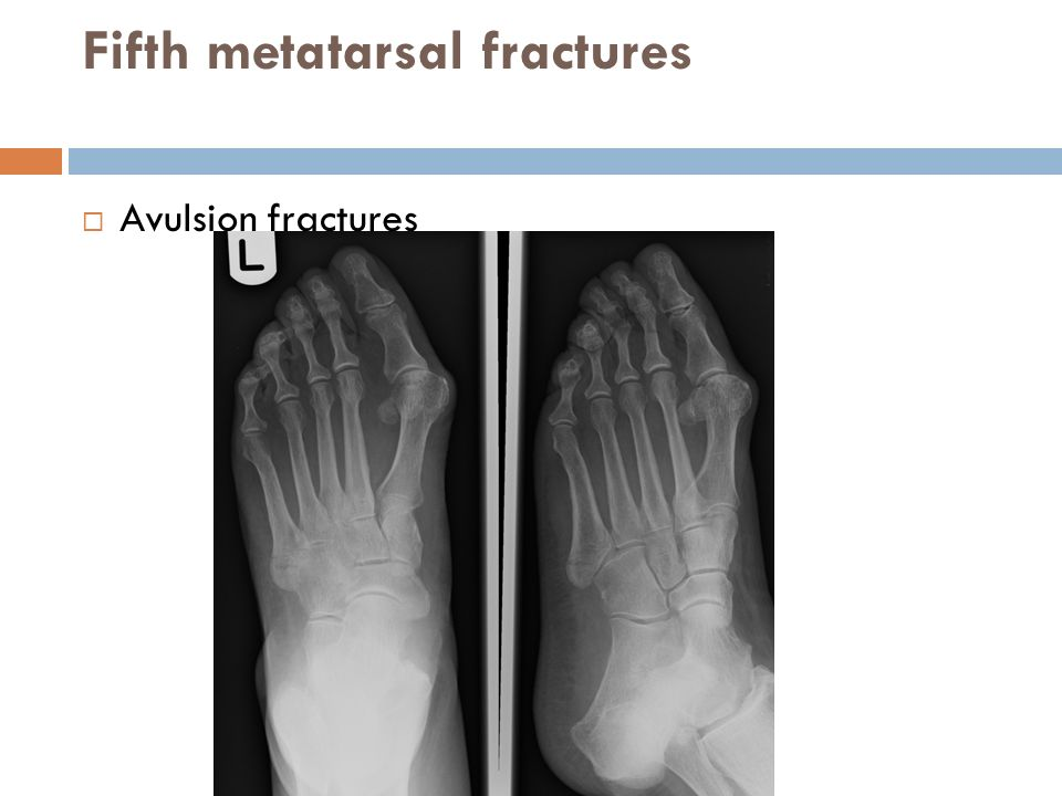 Fifth metatarsal fractures  Avulsion fractures