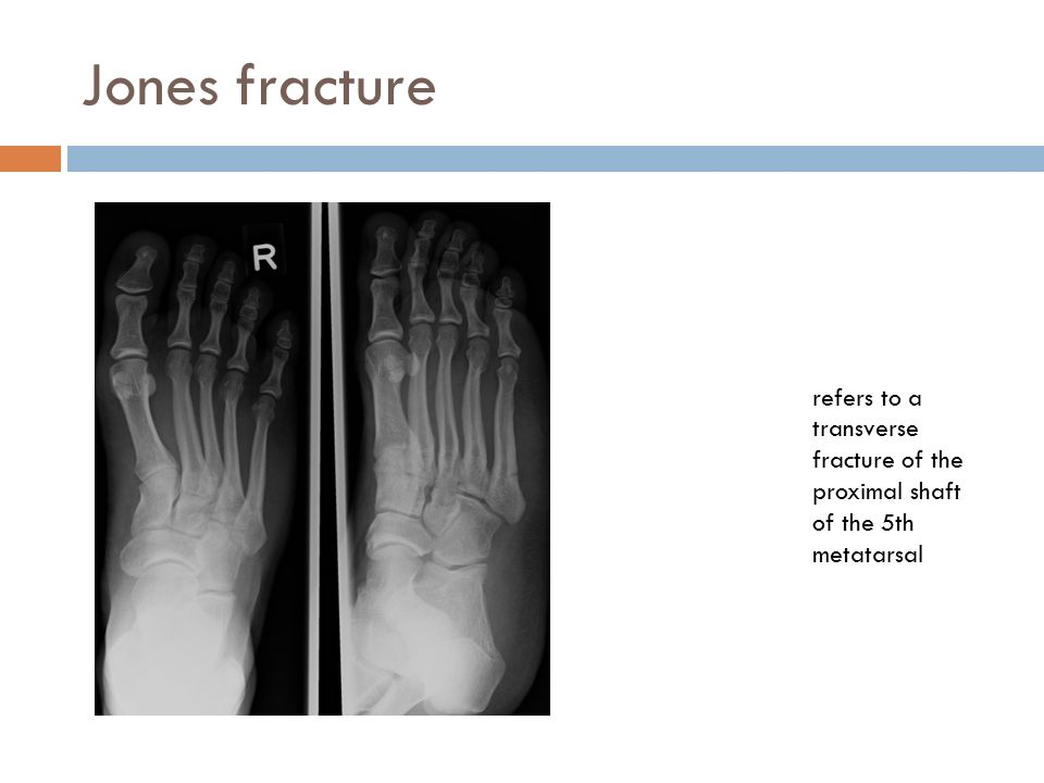 Jones fracture refers to a transverse fracture of the proximal shaft of the 5th metatarsal