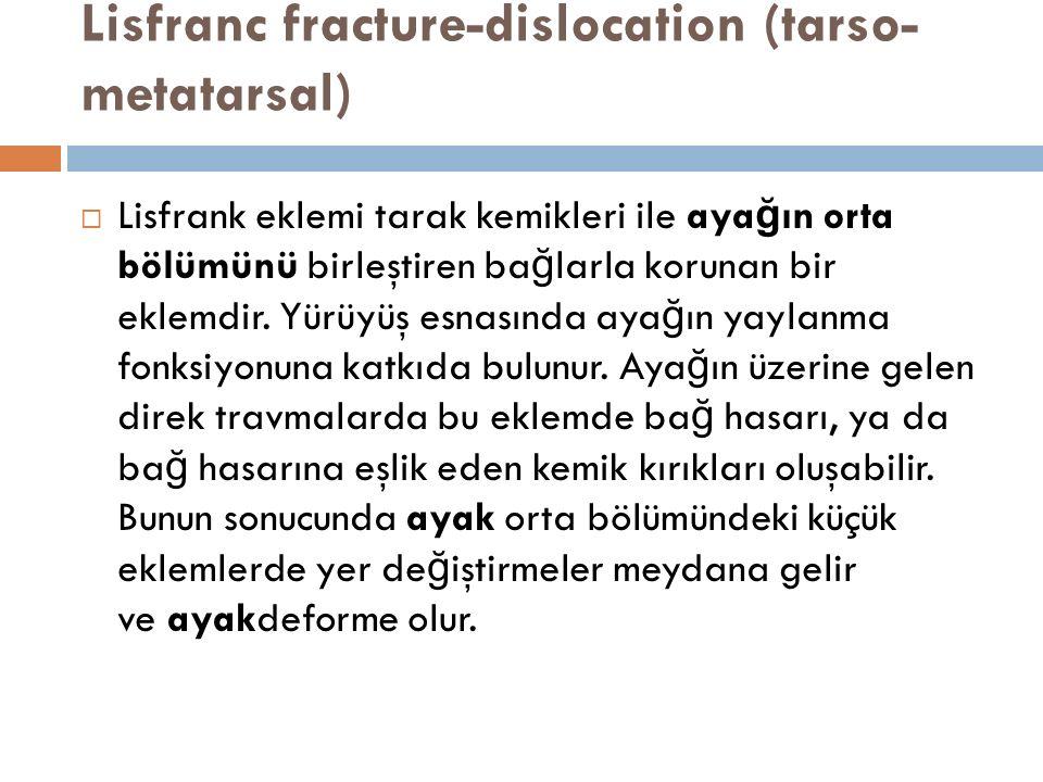 Lisfranc fracture-dislocation (tarso- metatarsal)  Lisfrank eklemi tarak kemikleri ile aya ğ ın orta bölümünü birleştiren ba ğ larla korunan bir ekle