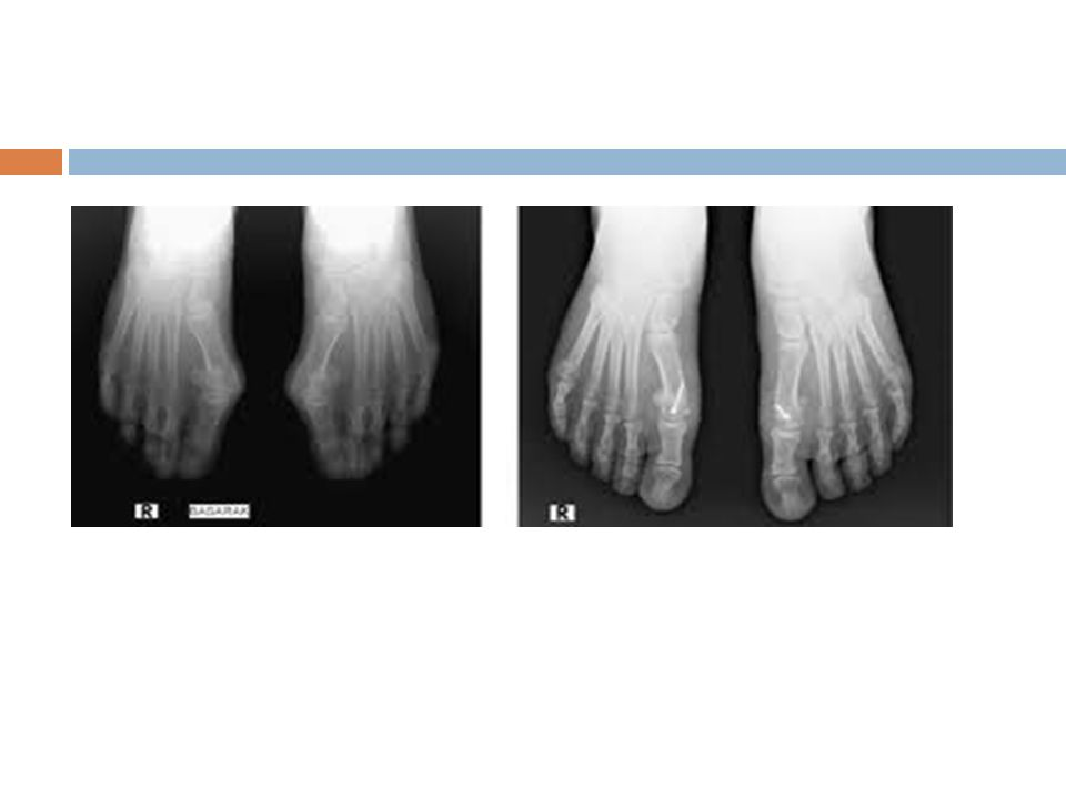 Stress fractures of the metatarsals