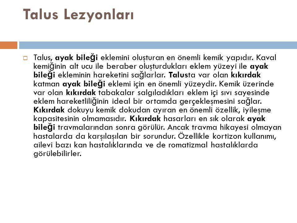 Talus Lezyonları  Talus, ayak bile ğ i eklemini oluşturan en önemli kemik yapıdır. Kaval kemi ğ inin alt ucu ile beraber oluşturdukları eklem yüzeyi