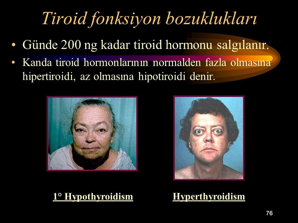 76 Tiroid fonksiyon bozuklukları Günde 200 ng kadar tiroid hormonu salgılanır. Kanda tiroid hormonlarının normalden fazla olmasına hipertiroidi, az ol