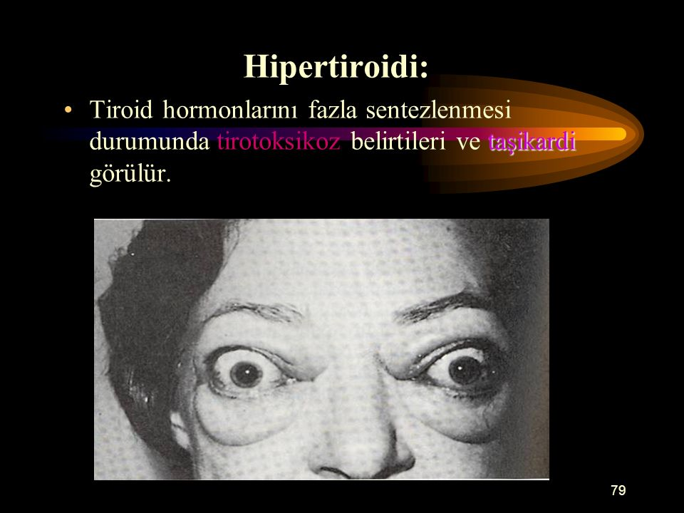 79 Hipertiroidi: taşikardiTiroid hormonlarını fazla sentezlenmesi durumunda tirotoksikoz belirtileri ve taşikardi görülür.