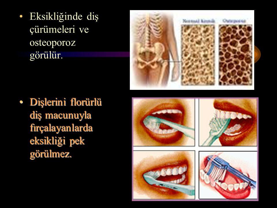 82 Eksikliğinde diş çürümeleri ve osteoporoz görülür. Dişlerini florürlü diş macunuyla fırçalayanlarda eksikliği pek görülmez.Dişlerini florürlü diş m