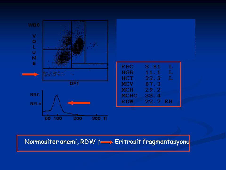 Normositer anemi, RDW ↑ Eritrosit fragmantasyonu