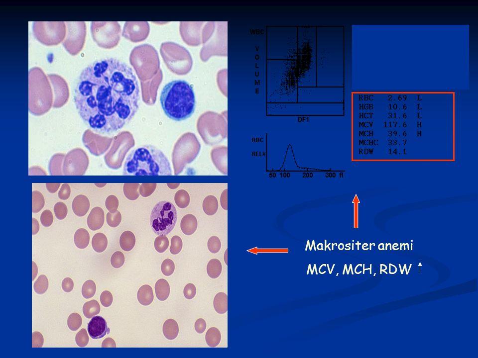 Makrositer anemi MCV, MCH, RDW