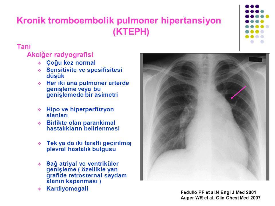 Kronik tromboembolik pulmoner hipertansiyon (KTEPH) Tanı Akciğer radyografisi  Çoğu kez normal  Sensitivite ve spesifisitesi düşük  Her iki ana pul