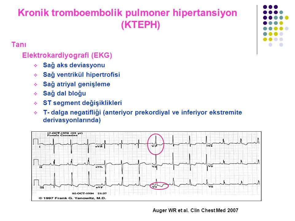 Kronik tromboembolik pulmoner hipertansiyon (KTEPH) Tanı Elektrokardiyografi (EKG)  Sağ aks deviasyonu  Sağ ventrikül hipertrofisi  Sağ atriyal gen